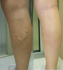 Modalități de întărire a vaselor de sânge și a capilarelor în picioare - Distonie April