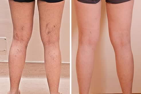 crema de la fotografii varicoase bandaje elastice pe picioare în varicoză